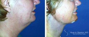 tighter skin after neck lift