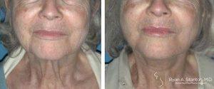no more sagging skin after neck lift