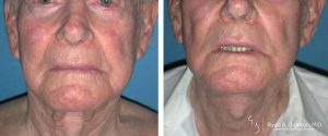 neck lift male patient before and after