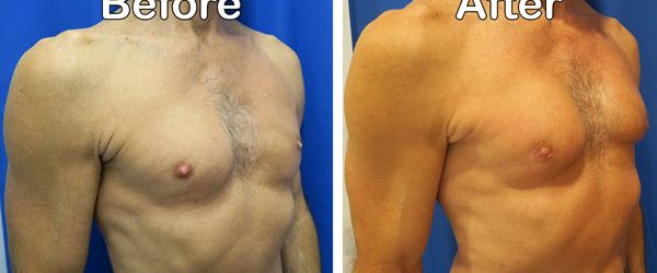 right oblique view before and after pec implants