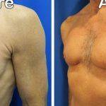 left oblique view of patient's chest