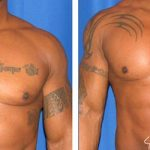 before and after pectoral implants front view