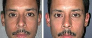 male patient rhinoplasty images