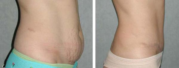 right profile view of tummy tuck results
