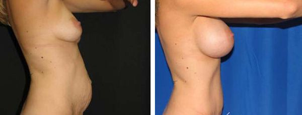right profile view tummy tuck before and after