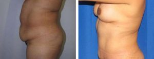 tummy tuck left profile view before and after