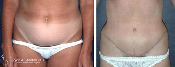 tummy tuck front view case 2