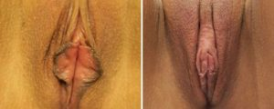 vaginal rejuvenation before after case 2