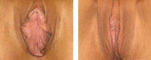 vaginal rejuvenation before after case 1