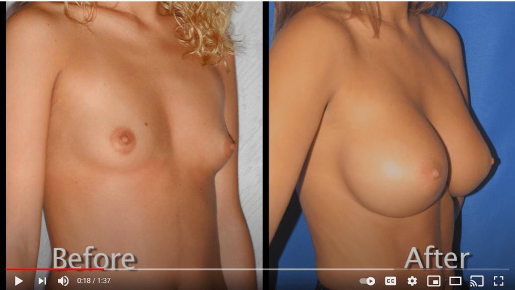 Youtube video screenshot