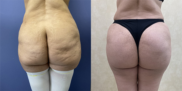 Before and after butt augmentation with implants Dr. Ryan Stanton, Los Angeles, CA